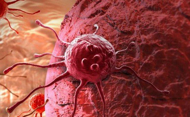 Thừa cân, béo phì làm tăng nguy cơ ung thư